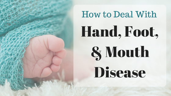 How to Deal with Hand Foot & Mouth Disease